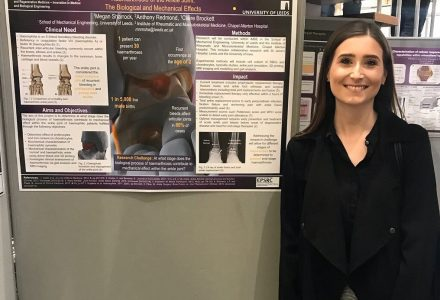 Presenting my poster on haemarthrosis of the ankle joint.